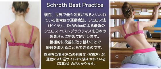 側弯症の運動療法、シュロスベストプラクティス
