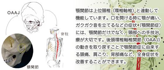 顎関節症に由来する頭痛、肩こり、背部痛などの改善